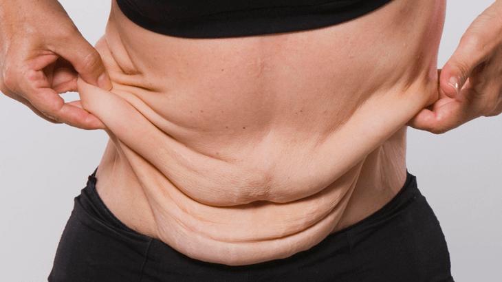 Обвисшая кожа после неправильной диеты